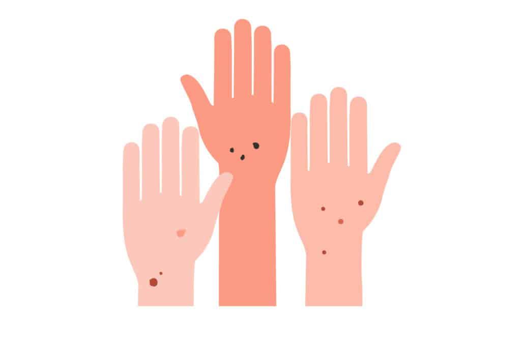 Hände mit Leberflecken
